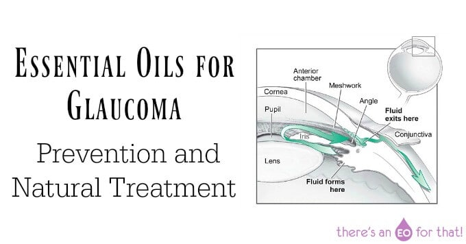 Essential Oils for Glaucoma – Prevention and Natural Treatment